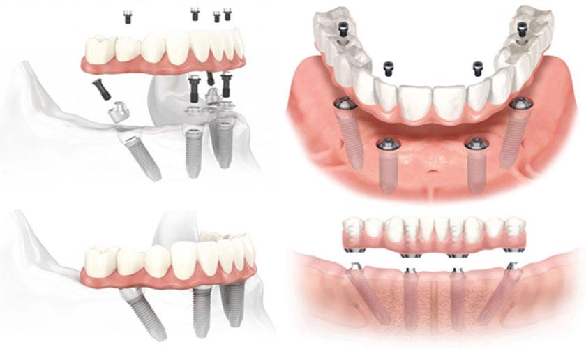 Qúa trình cấy ghép Mini Implant