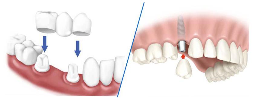 So sánh trồng răng Implant và cầu răng sứ khi bị mất răng