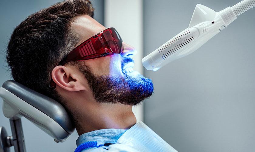 Tẩy trắng răng siêu nhanh bằng công nghệ Laser whitening